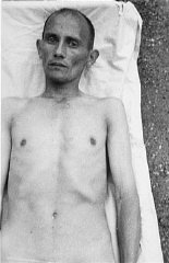 """<p>A Romani (Gypsy) victim of <a href=""""/narrative/3000/en"""">Nazi medical experiments</a> to make seawater safe to drink. <a href=""""/narrative/4391/en"""">Dachau</a> concentration camp, Germany, 1944.</p>"""