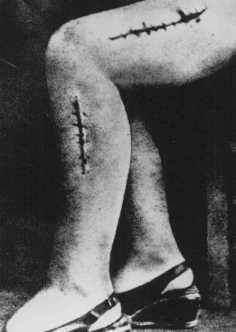 "<p>A war crimes investigation photo of the disfigured leg of a survivor from Ravensbrück, Polish political prisoner Helena Hegier (Rafalska), who was subjected to medical experiments in 1942. This photograph was entered as evidence for the prosecution at the <a href=""/narrative/9245"">Medical Trial</a> in Nuremberg. The disfiguring scars resulted from incisions made by medical personnel that were purposely infected with bacteria, dirt, and slivers of glass.</p>"