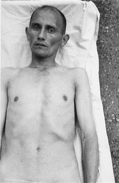 A Romani (Gypsy) victim of Nazi medical experiments to make seawater safe to drink. [LCID: 78683]