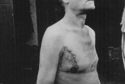 <p>A Soviet prisoner of war, victim of a tuberculosis medical experiment at Neuengamme concentration camp. Germany, late 1944.</p>