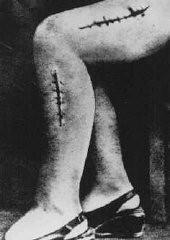"""<p>Foto da perna desfigurada de uma sobrevivente do campo de concentração de Ravensbrück. A foto é da prisioneira política polonesa Helena Hegier (Rafalska), que foi sujeita a experiências """"médicas"""" nazistas em 1942. A fotografia foi utilizada para auxiliar na investigação dos crimes de guerra, sendo utilizada como evidência pela equipe de acusação no assim chamado Julgamento dos Médicos, em Nuremberg. As cicatrizes eram o resultado de incisões feitas por equipes médicas que propositalmente infectavam os cortes com bactérias, sujeira e cacos de vidro.</p>"""