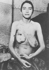 Détenu du camp de concentration de Ravensbrück soumis à des expériences médicales.